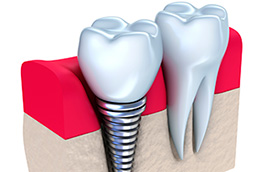Does Dental Implant Treatment Hurt?