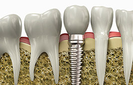Teeth Replacement with Dental Implants