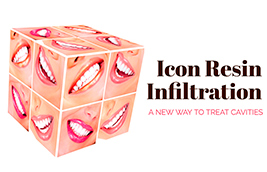 Icon Resin Infiltration: A New Way to Treat Cavities