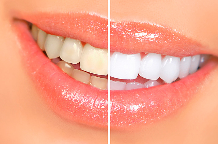 What Causes Tooth Stains and How to Get Rid of Them