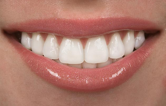 How Long Do Porcelain Veneers Last?