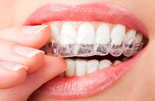 Our Dentist in Pasadena Offers Invisalign, an Invisible Alternative to Braces