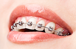 Tips to Ease the Pain of Braces