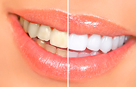 Why Do Teeth Become Stained?