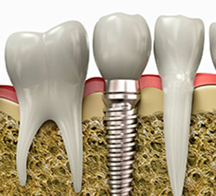 Dental Implants Pasadena