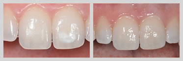 Before and After White (Composite) Fillings