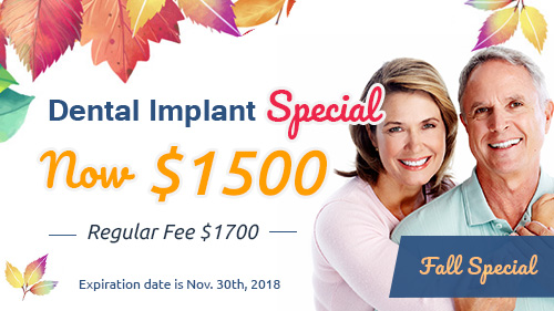 Implants Special Pasadena